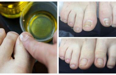 Дієві народні методи, які допоможуть позбутися від грибка нігтів