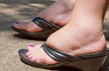 Чому набрякають ноги, і як з цим боротися. Приємним рецепт від їх позбавлення.