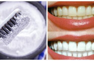 Кращі народні рецепти, для відбілювання зубів в домашніх умовах