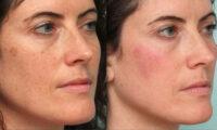Народні методи, які допоможуть позбутися плям на обличчі.