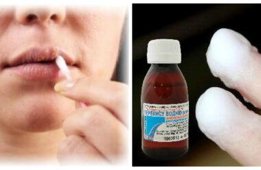 Перекис допомагає у лікуванні багатьох хвороб. Пропонуємо вам 30 порад для застосування.