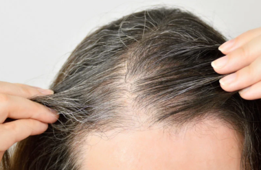 Що робити, щоб запобігти ранньому посивінню волосся. Корисні поради