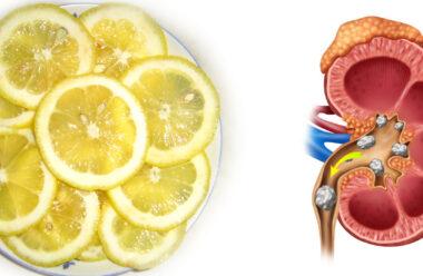Дієвий спосіб позбутися відкладень в нирках та сечовому міхурі.