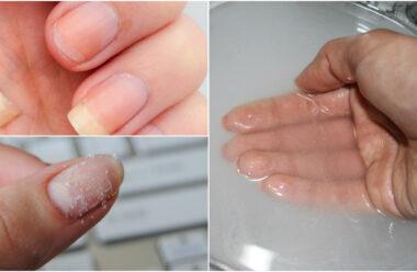 Чому ламаються та розшаровуються нігті. Поради, які допоможуть запобігти цьому