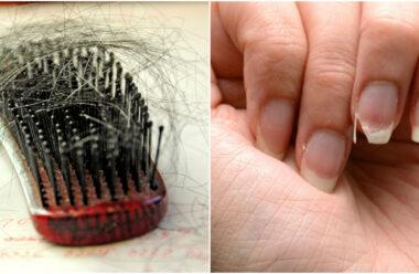 Рецепт, який допоможе запобігти випадінню волосся та ламкості нігтів