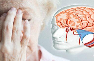 Ознаки мікроінсульту. На що сліз звернути в першу чергу, щоб не допустити ускладнень