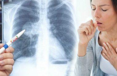 Як розпізнати скриту пневмонію. 6 головних симптомів на які слід звернути увагу