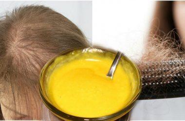 Дієвий засіб для боротьби з випадінням волосся. Рецепт приготування